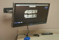 X-rays for Dental Procedures in Dubai Image