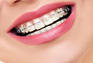 The Importance of Teeth Straightening Image