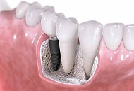 The Benefits of Endosteal Implants in Dubai Image