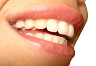 Cosmetic Dentistry in Dubai Image