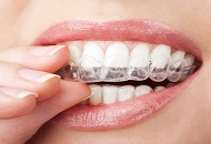 Treatment for Bruxism Image