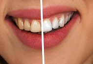 How to Treat Yellow Teeth Image