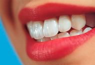 Gum Diseases and Treatments in Dubai Image