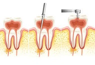 The Advantages of Endodontic Treatments in Dubai Image