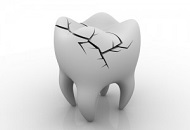 Cracked Tooth Syndrome Image