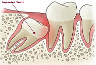 What you Need to Know About Wisdom Teeth image