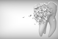 How Long Does It Take to Have Cosmetic Dentistry? image