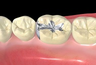 The Benefits of Dental Sealants image