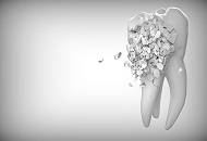 What To Do in Case of Periodontitis image
