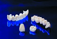 Ceramic Materials Used for Dental Treatments image