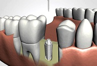 Duration of a Dental Implant Image