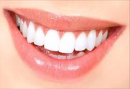 Teeth Whitening in Dubai Image