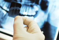 Dental Radiology in Dubai Image