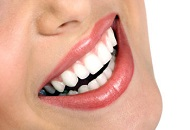 What You Need to Know About Laser Teeth Whitening image