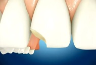 How to Treat a Chipped Tooth image