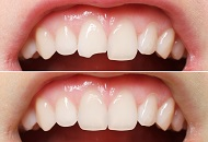 How to Correct Chipped Teeth Image