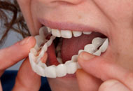 The Snap-on Smile Prosthesis image