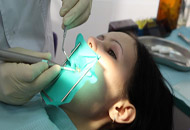 How is Dental Dam Used in Dental Treatments Image