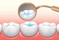 What Are the Dental Sealants? image
