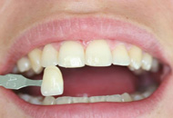 Dental Veneers in Dubai Image