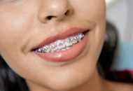 Orthodontics in Dubai Image