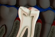 Treatment for Cracked Tooth Syndrome image